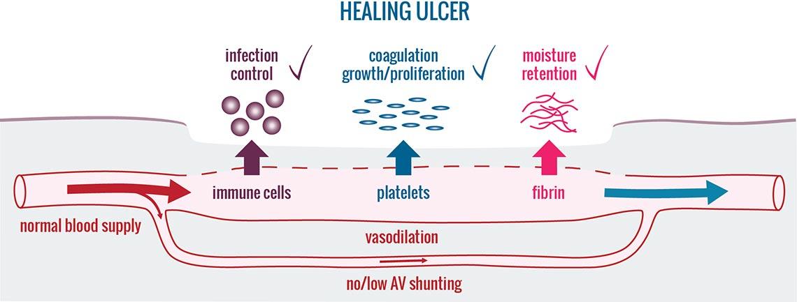 Leucopatch_HealingUlcer